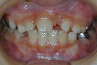 左上(写真では正面右)の前歯が出てきません。レントゲン写真では上を向いています。