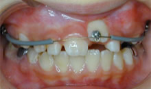 自力では生えてこないので、歯茎の中から引っ張り出します。約10ヶ月かかりました。