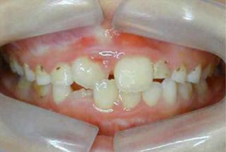 右の前歯の噛み合わせが反対です。