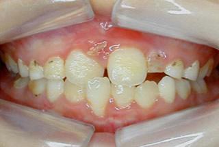 暫く様子をみていたら下の前歯に影響が出ました。