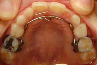 右の前歯の歯の裏側の装置で上の前歯を押します。噛み合わせが反対です。