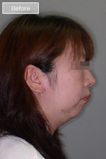 矯正治療前の顔写真