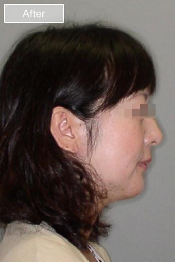 矯正治療後の顔写真