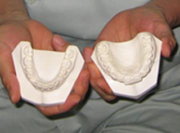 上下の歯型