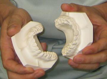 顎関節の位置を無視