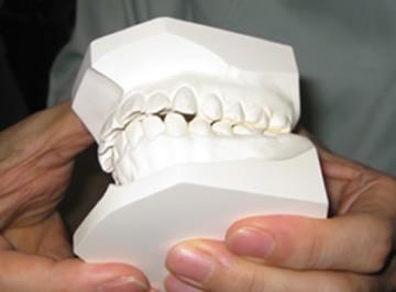 歯型の噛み合わせ