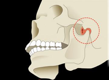 咬合器に取り付けた歯型