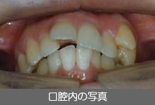 口腔内の写真