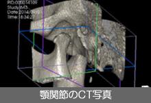 咬顎関節のCT写真