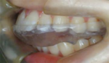 顎関節安定化装置