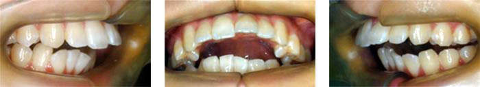 顎関節が本来の位置に戻った時の噛み合わせ