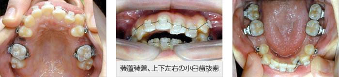 装置装着、上下左右の小臼歯抜歯