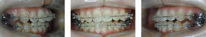 上下の歯列排列中