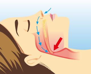いびき・睡眠時無呼吸の治療