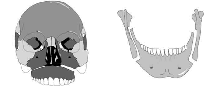 治療の手順 骨格性下顎前突