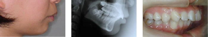 治療の手順 骨格性上顎前突(下顎後退)