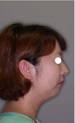 下顎後退 29歳女性