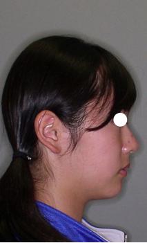 上顎前突 12歳女性