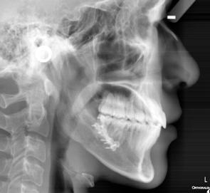 下顎前突 20歳男性